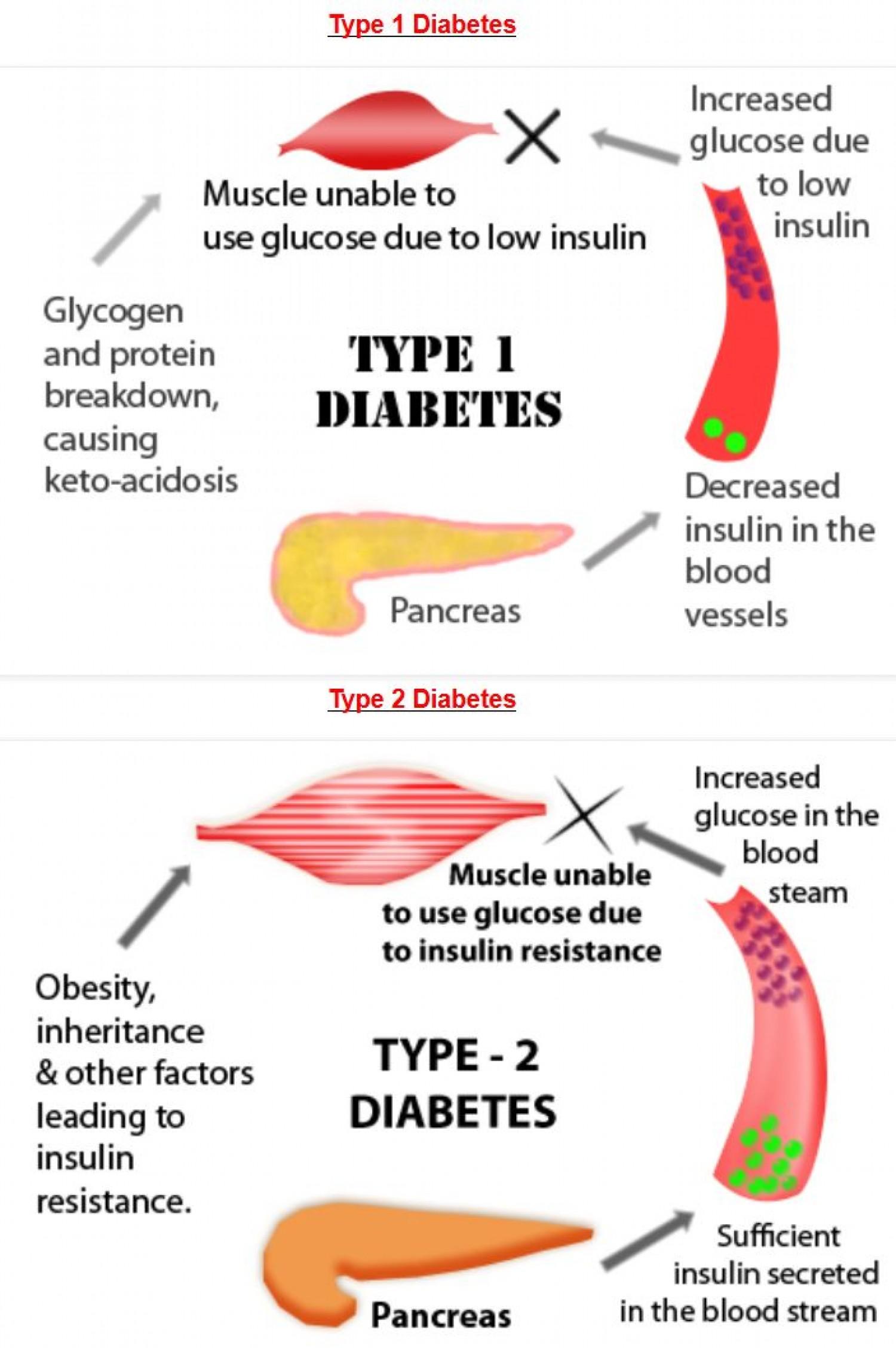 Diabetes 1 Ja 2